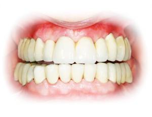 Tandenservice bij tandarts in Utrecht